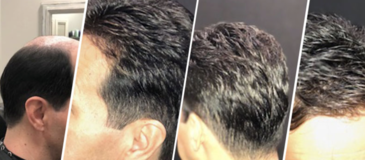 How PHD Dallas Hair Replacement Is Helping Men with Non-Surgical Hair Replacement