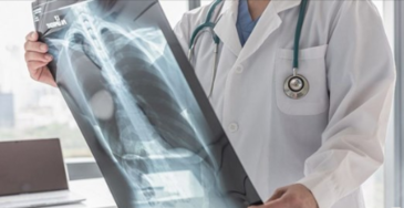 Is lung cancer misdiagnosis medical malpractice?